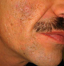 acne scarring man's face