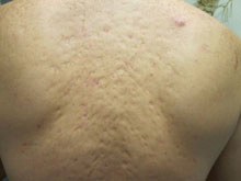 Acne Scars on Back in Toronto