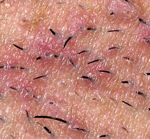 Dealing With Ingrown Hair Laser Hair Removal And Other Options