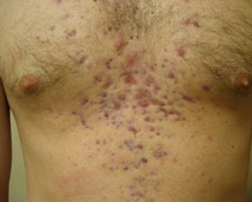 chest acne on man