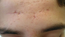 Scars from Acne on Forehead