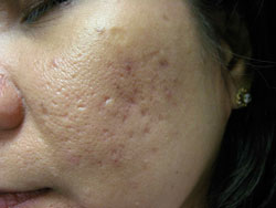 Moderate Acne Scars on Face