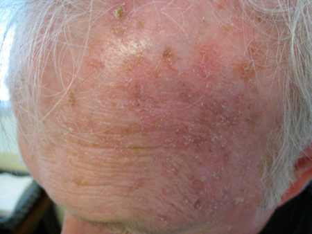 Actinic Keratoses Very Common Pre Cancers You Need To Know About Toronto Dermatology Centre