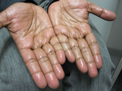 Hyperhidrosis Toronto - Excess Local Sweating Treatment Clinic