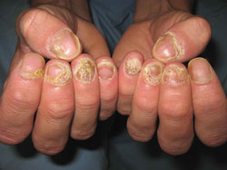 Psoriasis treatment for fingers