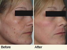 Photorejuvenation (IPL / BBL) - Toronto Dermatology Centre