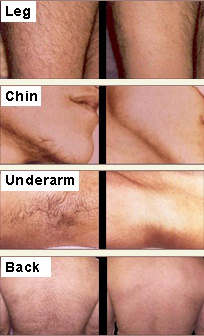 laser removing leg, chin and underarm hair