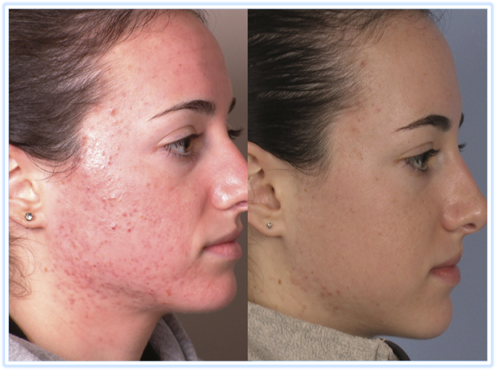 Treat Inflammatory Acne 02