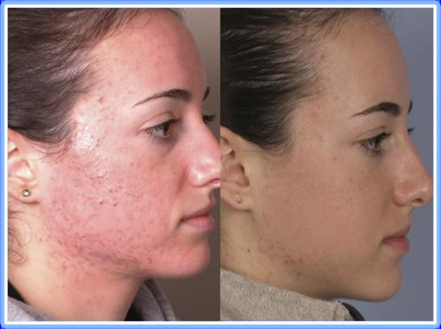 Treat Inflammatory Acne 02