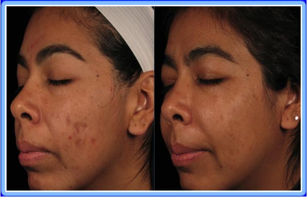 Treat Post-Inflammatory Hyperpigmentation 02