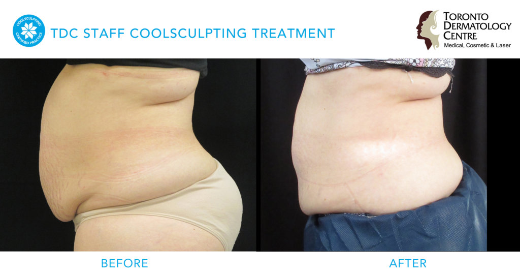 tdc staff coolsculpting before & after