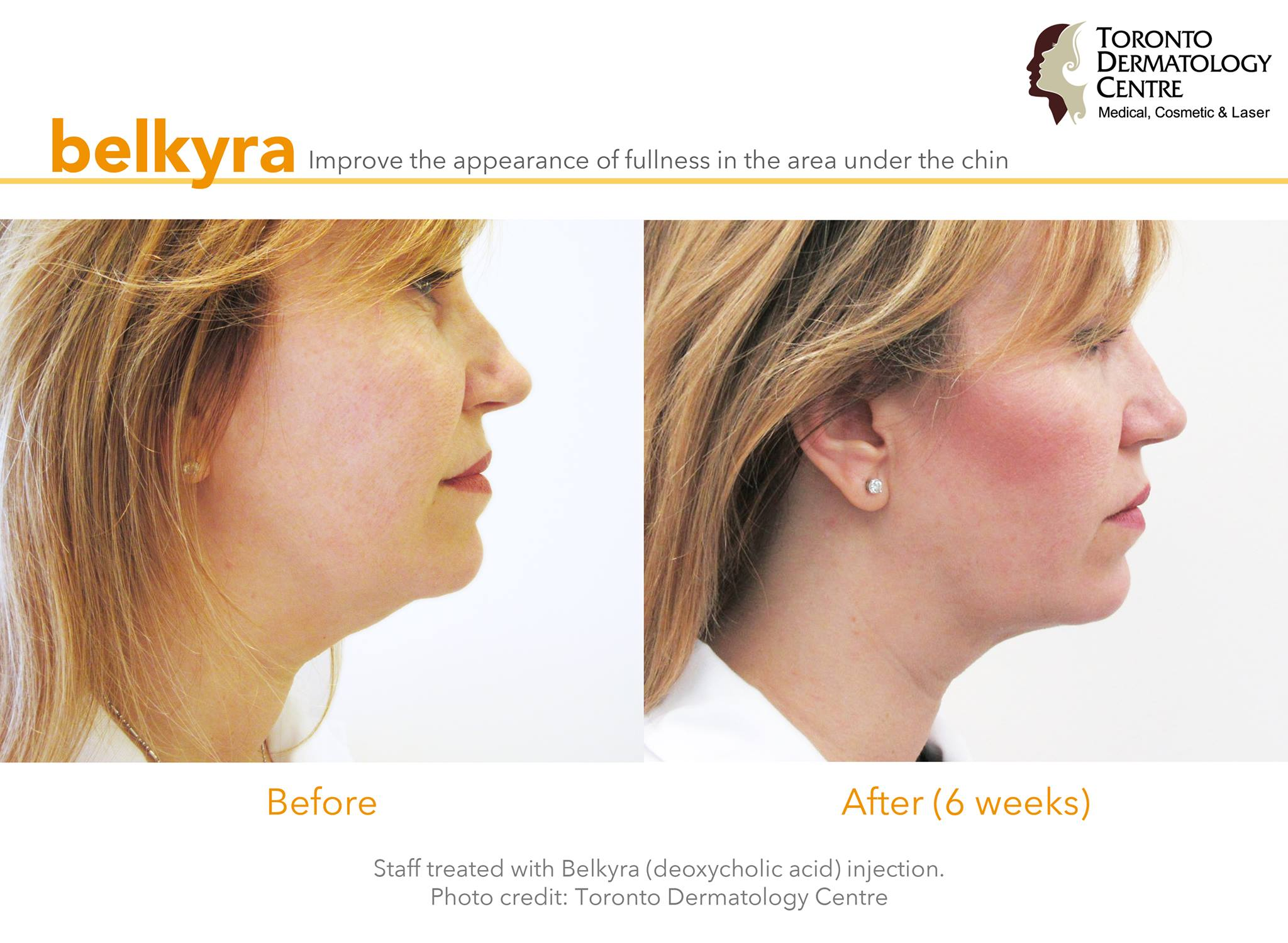 staff-belkyra-treamtent-before-and-after