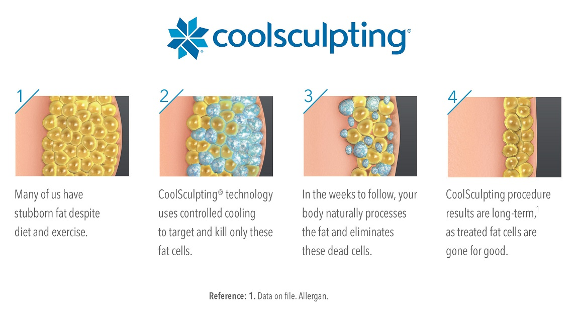 Coolsculpting Toronto Clinic Check Out Our Before Photos Toronto