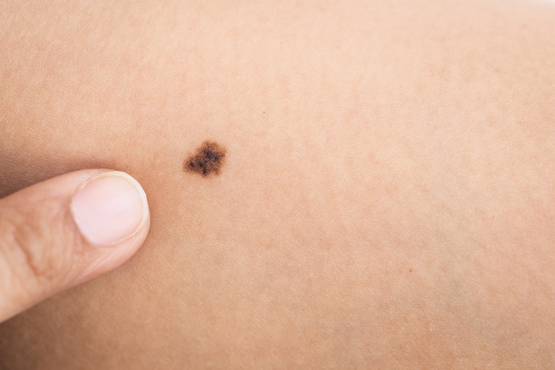 Black mole lesion birthmark on skin
