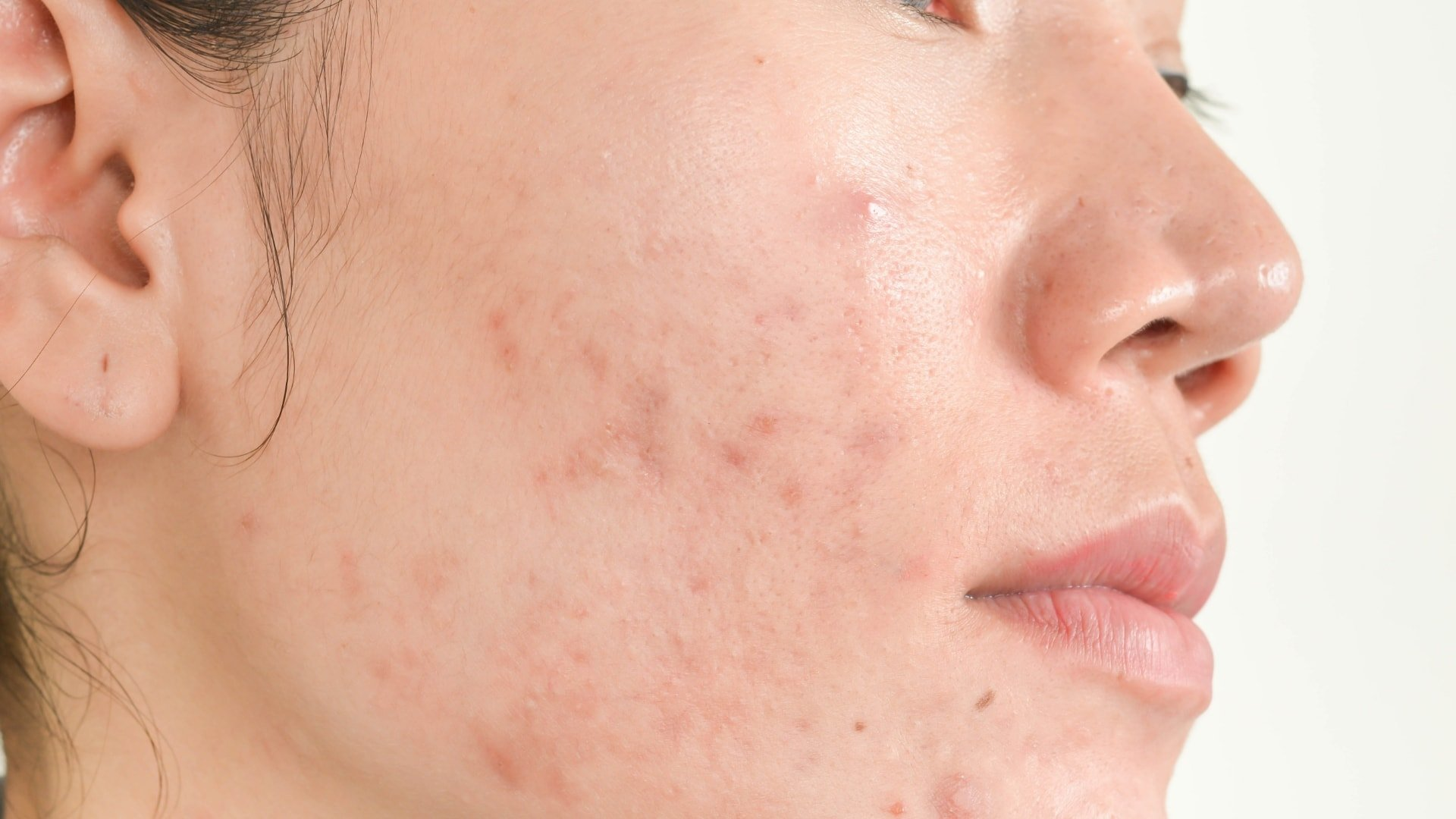Acne Scarring Toronto Best Acne Treatment