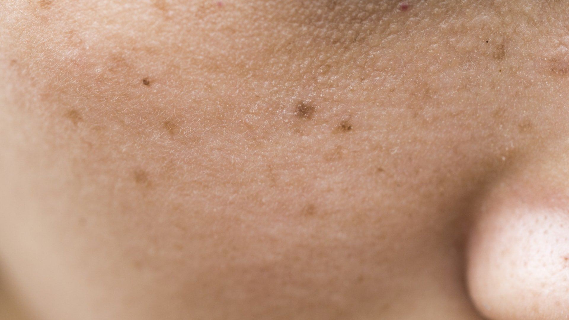 Woman have freckles on face